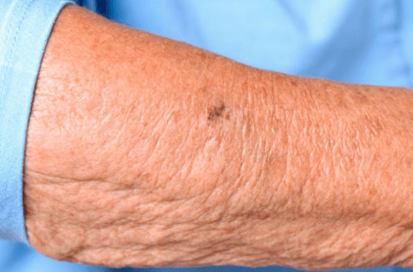 Crepiness - Thin Skin