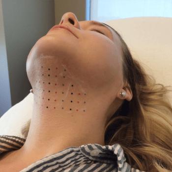 Deoxycholic Acid Treatment - Dermatology On Bloor