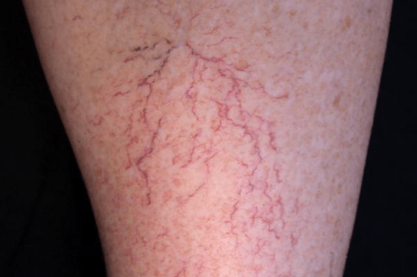 Leg Veins - Dermatology on Bloor