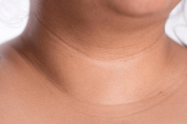 Necklace Lines