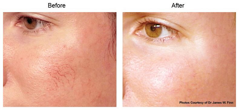 Santa Monica Vbeam Perfecta | Skin Rejuvenation Beverly Hills
