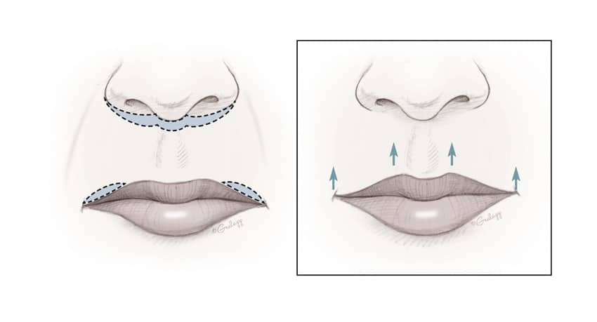 Lip reshaping. Image credit: Chris Gralapp
