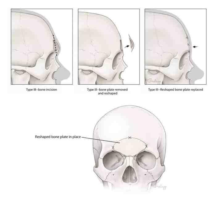 facial-feminization-surgery-ffs/feminizing-forehead-reduction