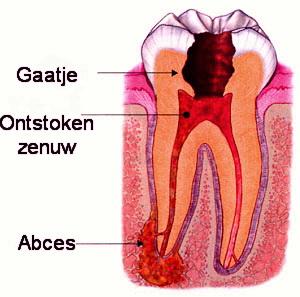 wortelkanaal-behandeling