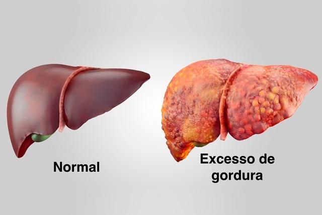 Esteatose Hepática – Gordura no Fígado