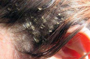 Caspa – Dermatite Seborreica