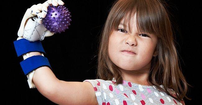 hailey mano3d - Vídeo del día: Una niña de 5 años lanza con su mano robótica impresa en 3D