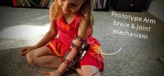 protesis impresa en 3d