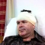 Imagem de David, um homem de 44 anos, deitado na cama hospitalar, com a cabeça alta e um curativo em forma de turbante protegendo a cabeça, ao redor das orelhas.