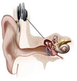 Parte interna, colocada no interior da coclea, que fica conectado com a parte externa, por uma antena (de imã) subcutânea.