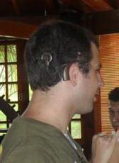 Foto do Marcus visto de perfil, com a parte externa do implante coclear aparecendo. Uma parte do aparelho fica atrás da orelha, ligada por um fio (chamado de antena) até outra parte que fica colada no crânio, por meio de imã.