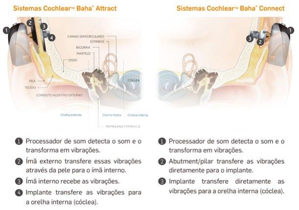 Sistema Baha Connect: O processador de som detecta o som, transforma em vibrações que são transmitidas à um pino de titânio ancorado ao osso do crânio, fazendo com que as vibrações cheguem à cóclea.