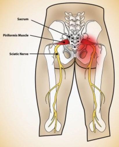 Sciatic-Nerve-244x300 Sciatica