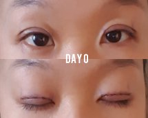 Double Eyelid Surgery Recovery Period - Year of Clean Water