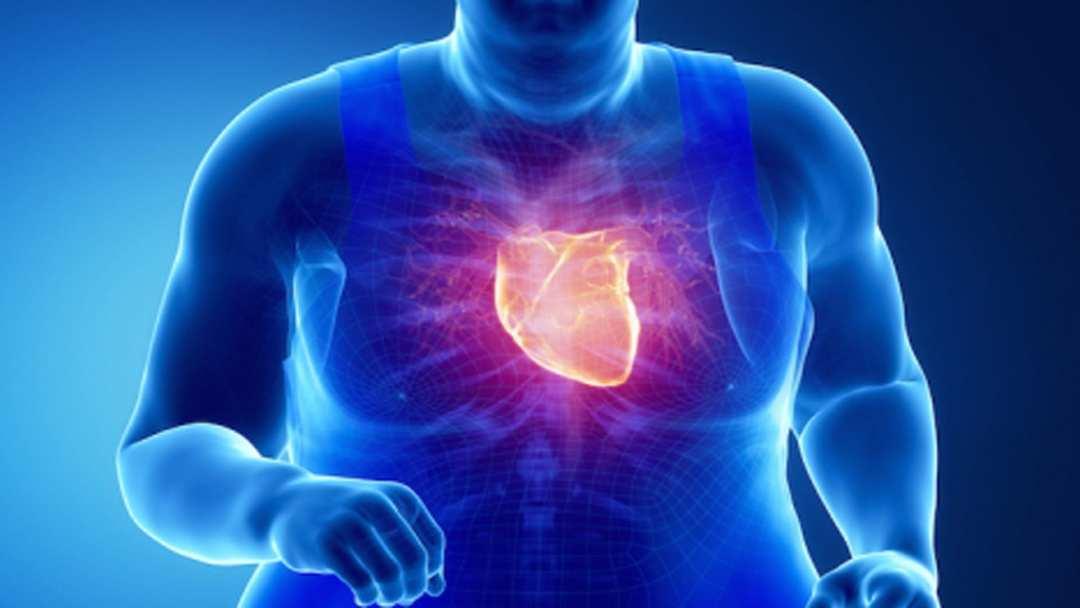 Obesidad • Metabolismo • Proteína • Célula • Trastorno metabólico