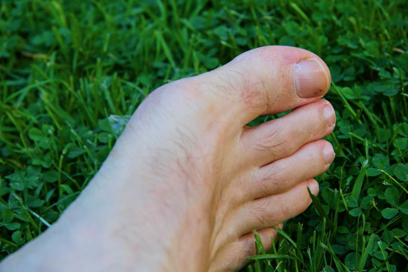 How To Treat An Infected Toe Without Antibiotics: What You Need To Know