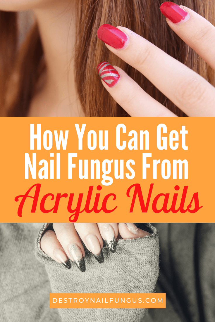 Acrylic Nail Fungus Pictures : acrylic, fungus, pictures, Fungus, Acrylic, Nails:, Know?