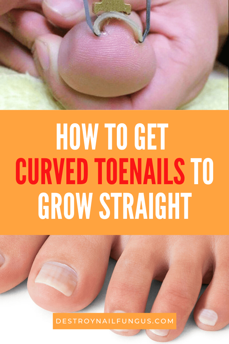 How To Fix Curved Toenails : curved, toenails, Toenails, Straight:, Complete, Guide