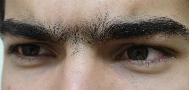 Unibrow Close Up