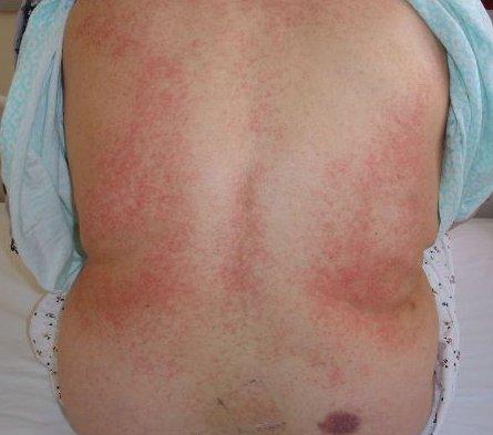 Thrombocytopenia5