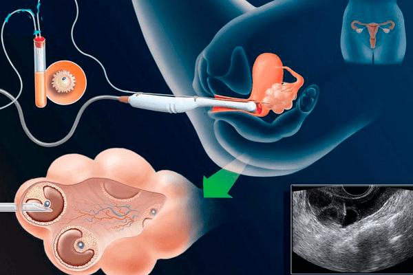 Fájdalom a prosztatában amikor vizelet van prostata ingrossata intervento laser