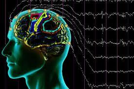 Obat Herbal Tradisional Untuk Penyakit Epilepsi