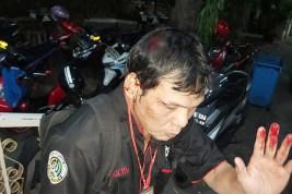 Wartawan Koran Sinar Pagi Diduga Dianiaya Oknum Polisi