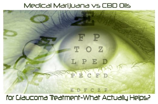 Medical Marijuana vs CBD Oil for Glaucoma Treatment