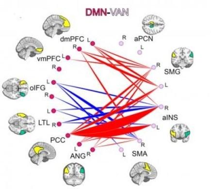 Связи в мозге
