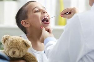 Ангина: причины, симптомы и лечение