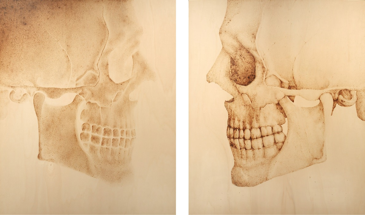 One skull, two sides