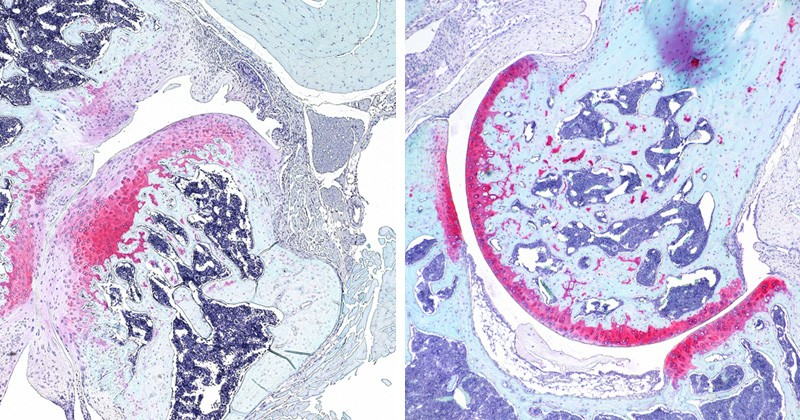 Microsopic images show a hip joint.
