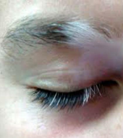 Fading eyebrows