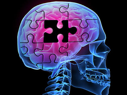 Decline of brain functions