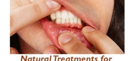 Try these home remedies to solve the problem of bleeding gums