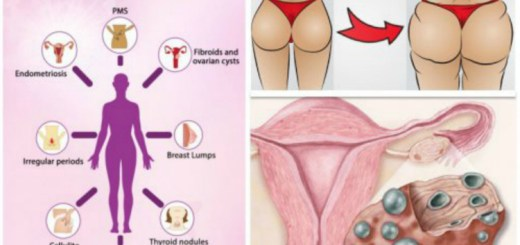 Early warning signs of estrogen dominance and ways to cope with it