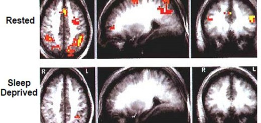This is how lack of sleep affects your brain