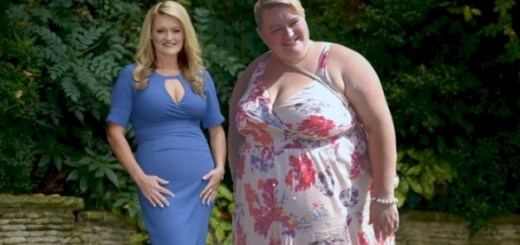This woman refused surgery and lost 200 pounds after doctors warned that she might die