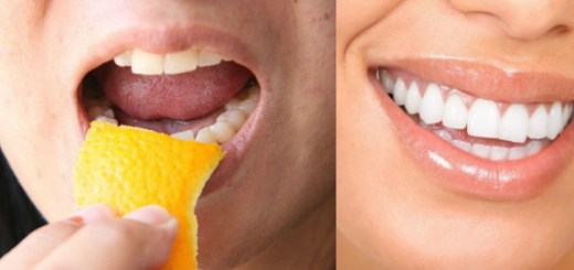 6 Natural hacks for whitening your teeth