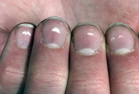 Why do white spots appear under our nails