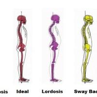 Pourquoi est-ce important d'améliorer sa posture et comment faire ?