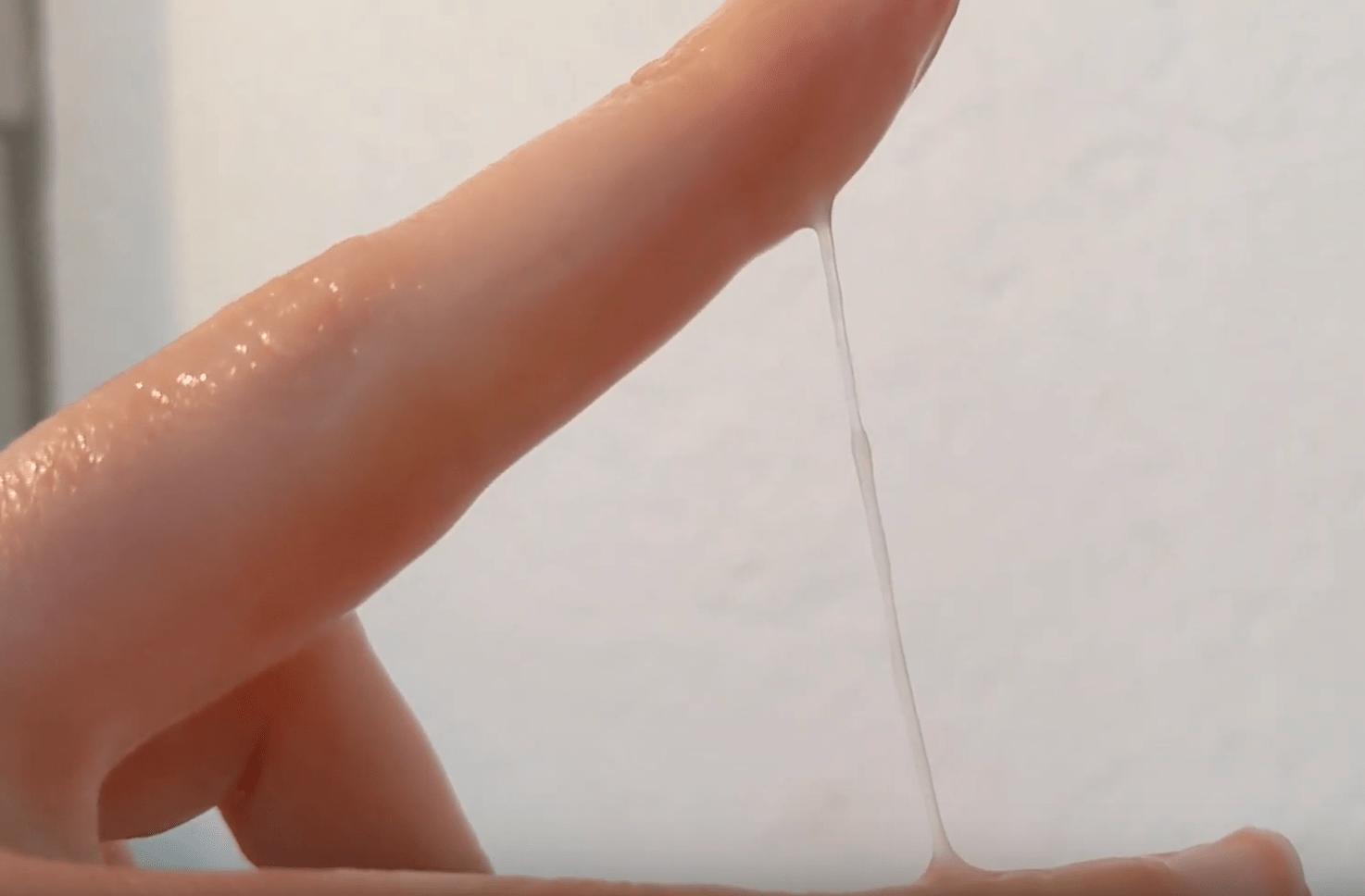 Dans les aspects de la glaire cervicale il y a l'aspect filant, élastique.