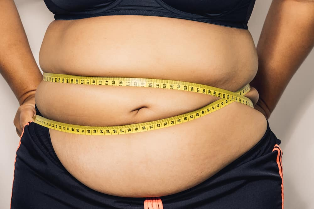 Ini Dia Alasan Mengapa Anda Menjadi Obesitas
