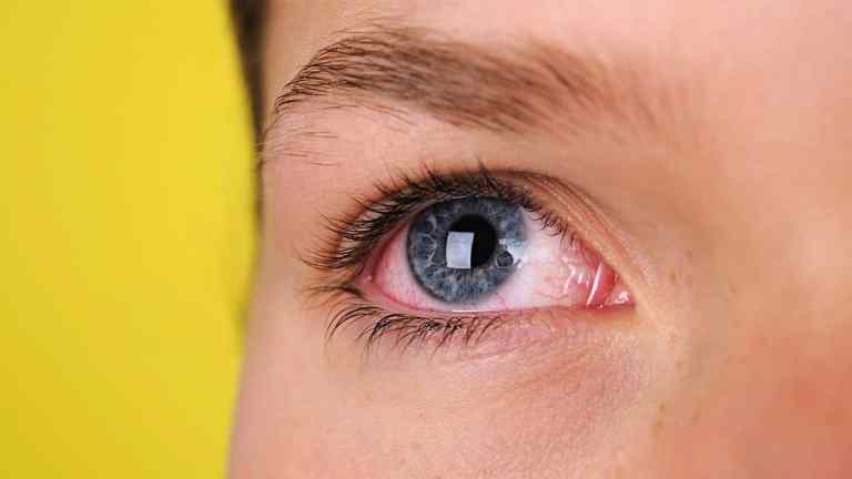 Dry Eyes Symptoms, Causes, and Treatments - All About Vision