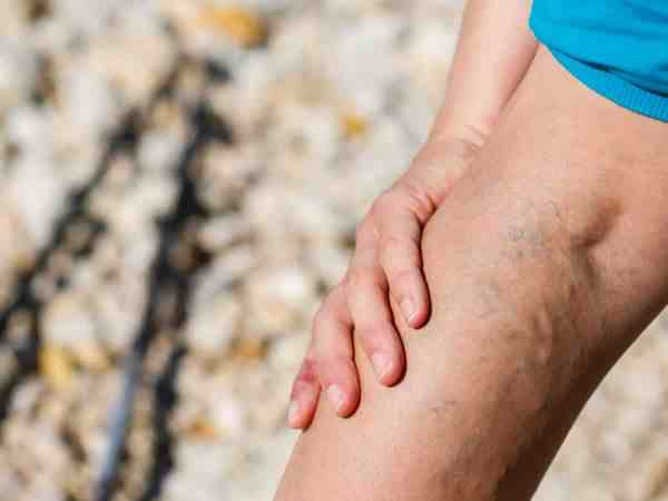 How To Treat Varicose Veins – Causes & Prevention