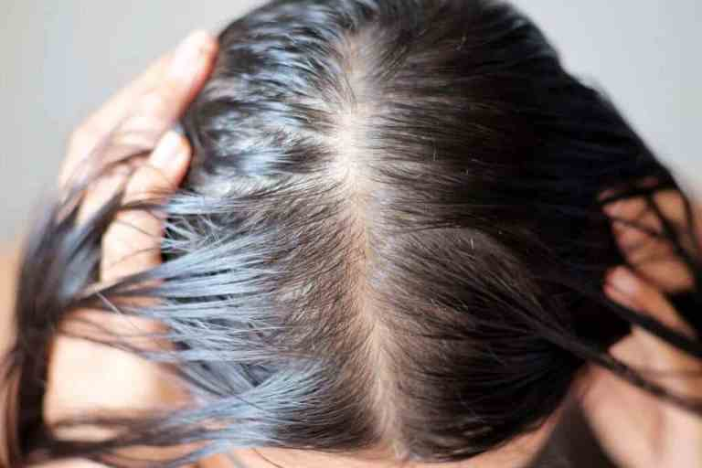 Should Medicines Or Supplements Intake Help For Hair Regrowth