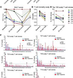 tcr analysis of lesional scalp and blood in aa patients and response t  [ 700 x 1189 Pixel ]