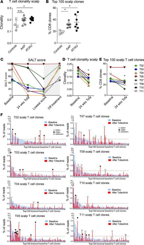 small resolution of tcr analysis of lesional scalp and blood in aa patients and response t