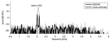 The 1.06 frequency ratio in the cochlea: evidence and