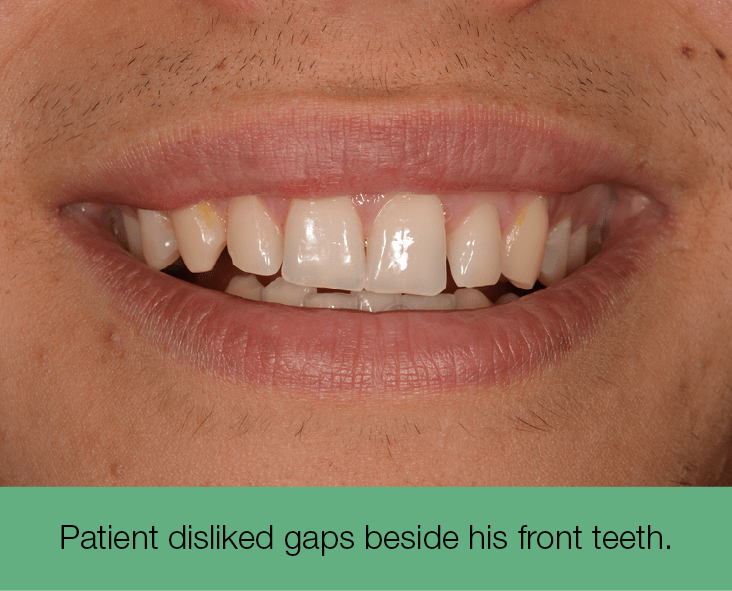 1. Patient disliked gaps beside his front teeth